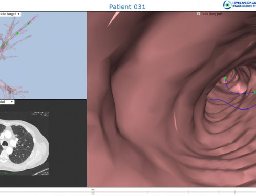 The diffusion of 3D visualization technologies from the field of CAE to the medical field
